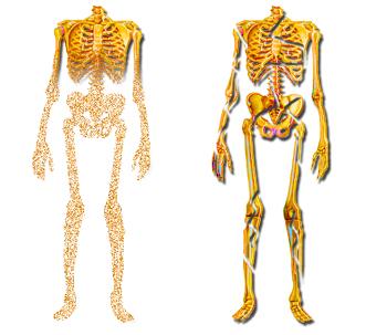 Fragilisation du squelette