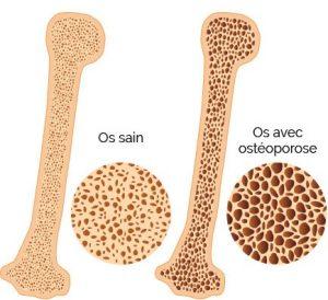 Comparaison de l'os entre individu sain et malade
