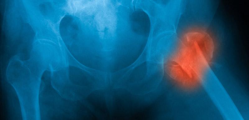 Les fractures dues à l'ostéoporose en hausse !