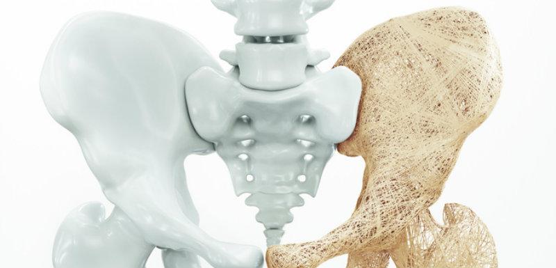 os de la hanche. osteoporose-corticoides