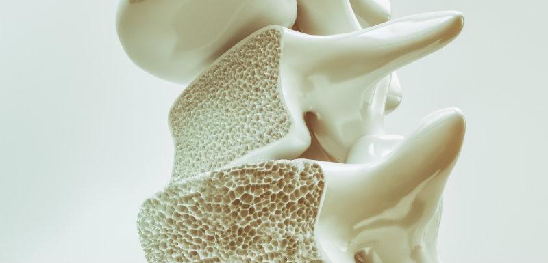 La santé osseuse des patients VIH traités au long cours