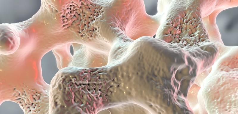 osteoporose-crise