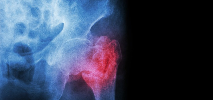 Meilleure prise en charge de l'ostéoporose grâce aux « filières fractures »